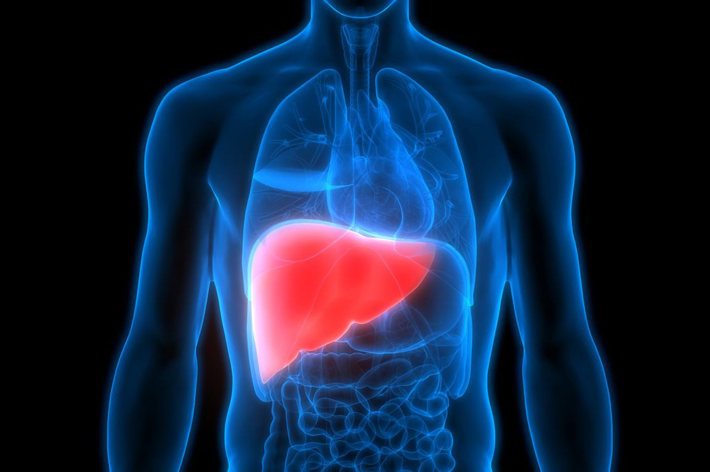 Q&A: Am I at risk for fatty liver disease?