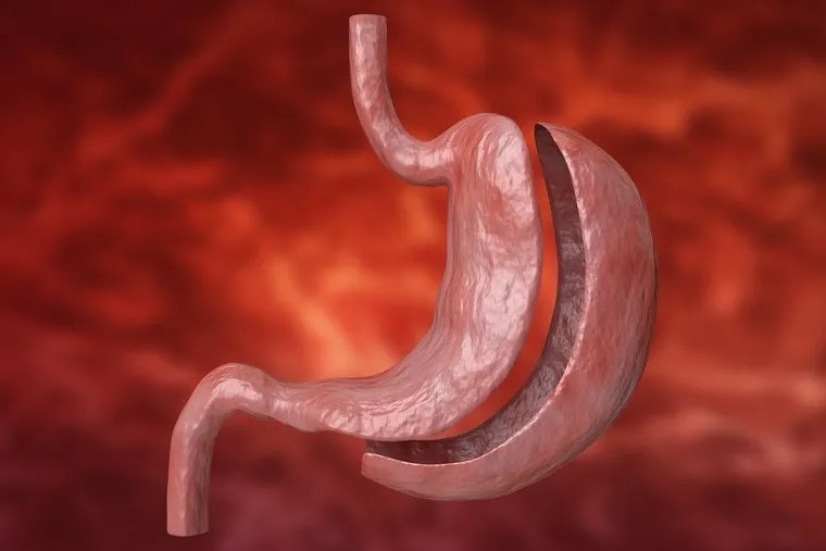Sleeve gastrectomy is a restrictive procedure that removes approximately 80% of the stomach.