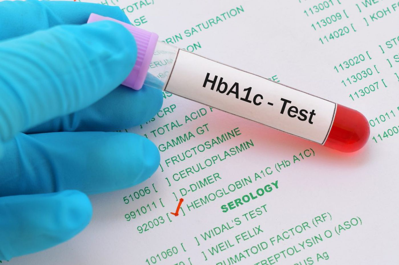 Q&A: What do I need to know about the new diabetes recommendations?