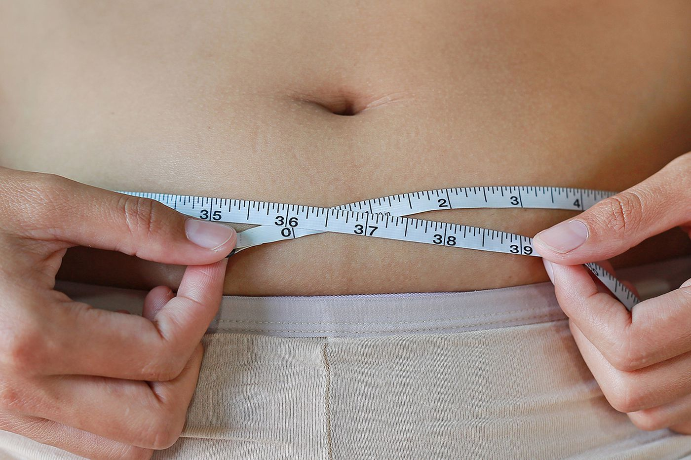Q&A: How does bariatric surgery affect metabolic syndrome?