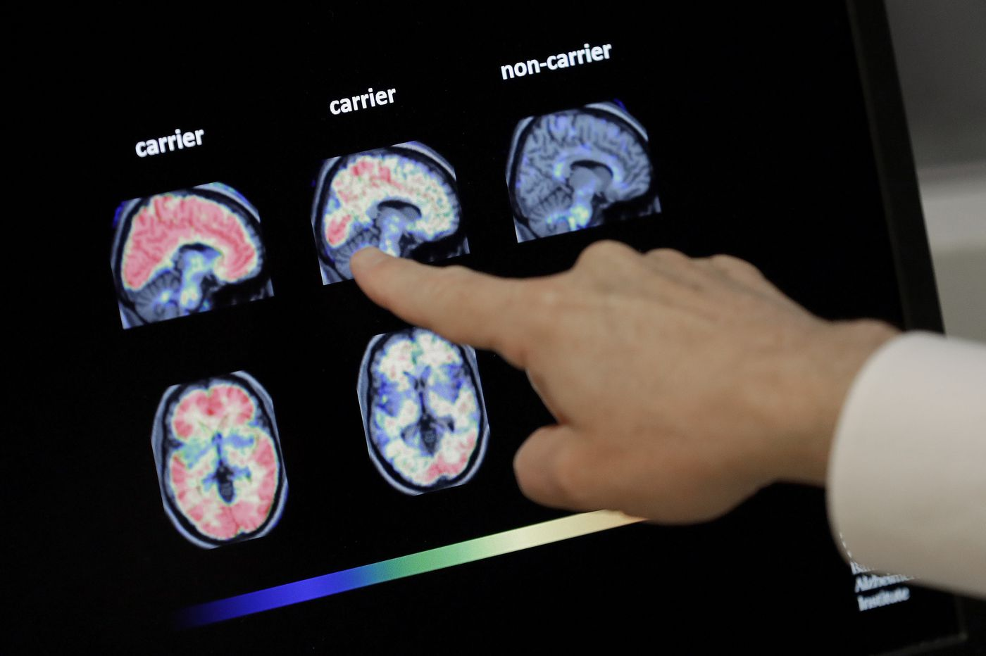 I was devastated when Biogen cancelled my Alzheimer's drug trial. Now I'm just bitter. | Opinion