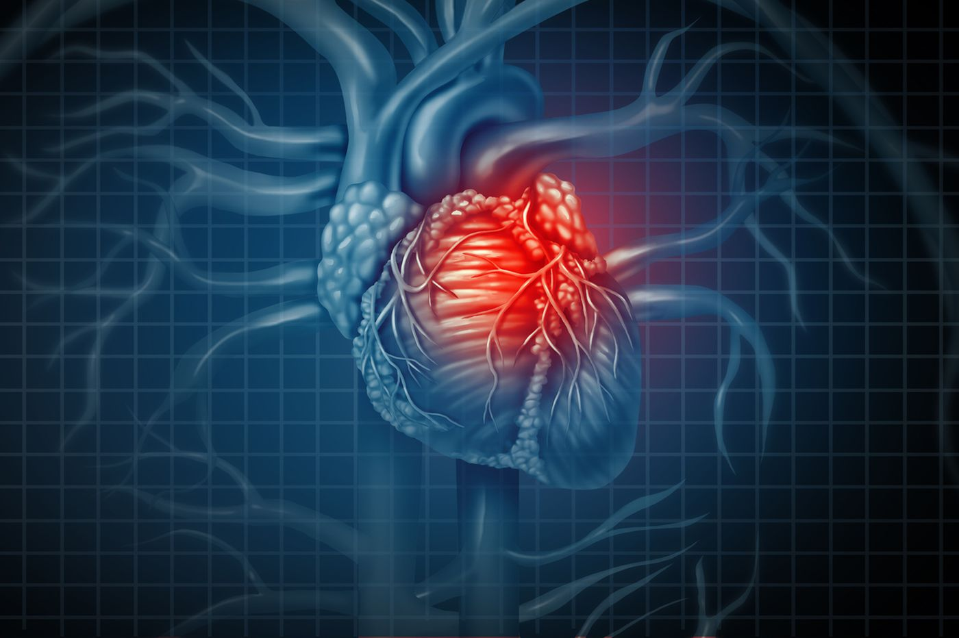 Q&A: How does stress affect my heart?
