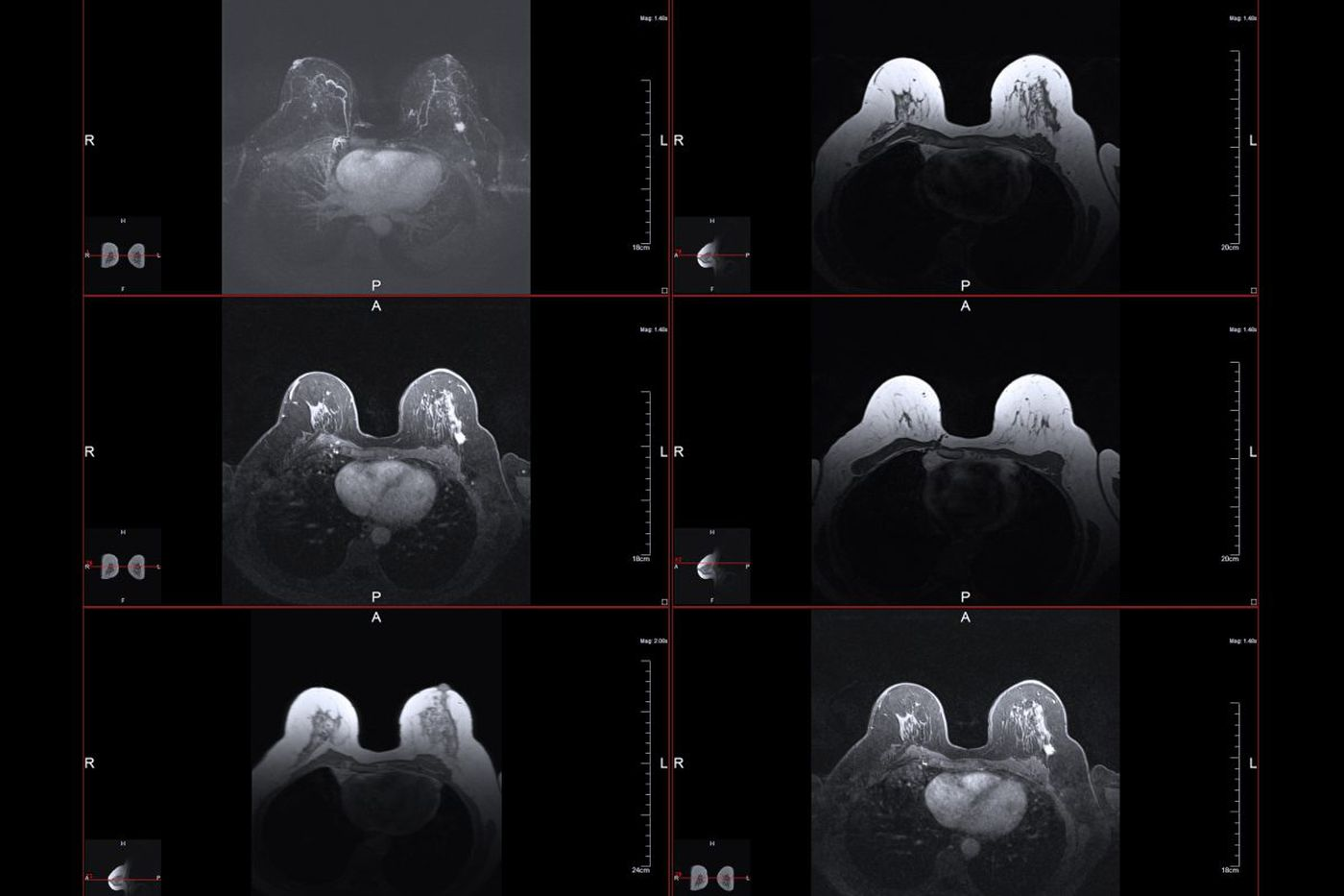 She was quoted $351 for a breast MRI. Then she was charged $4,650