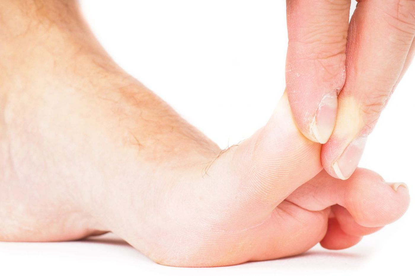 Medical mystery: His big toe was in a bad way