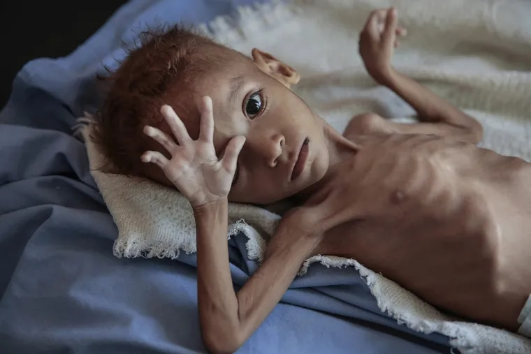 A severely malnourished boy rests on a hospital bed at the Aslam Health Center, Hajjah, Yemen., last month. Malnutrition, cholera, and other epidemic diseases like diphtheria ravaged through the displaced and the impoverished communities ravaged by the Saudi-run, U.S.-backed war.