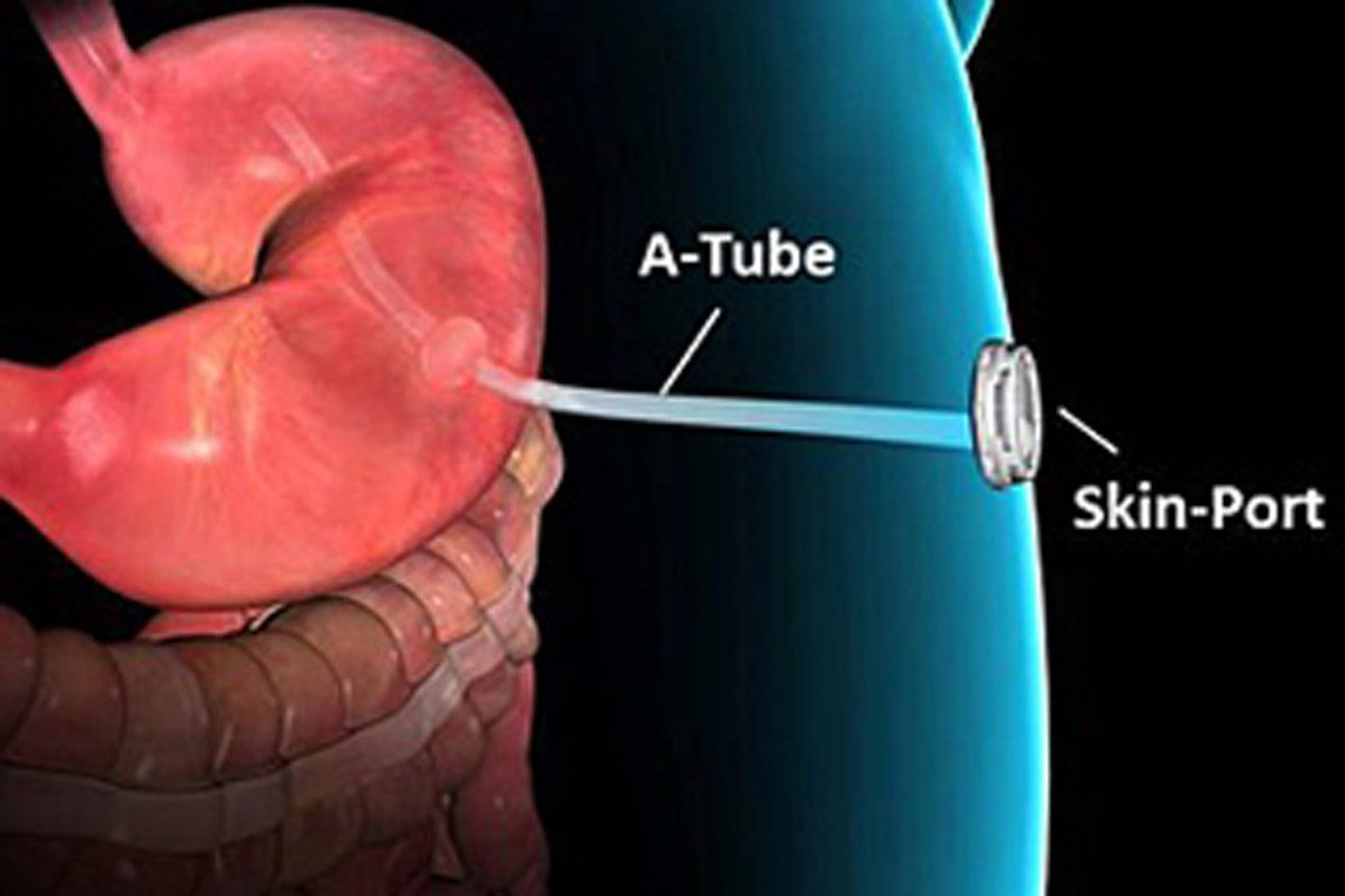 'Abdominal vomiting' device that raised eyebrows shows promising results