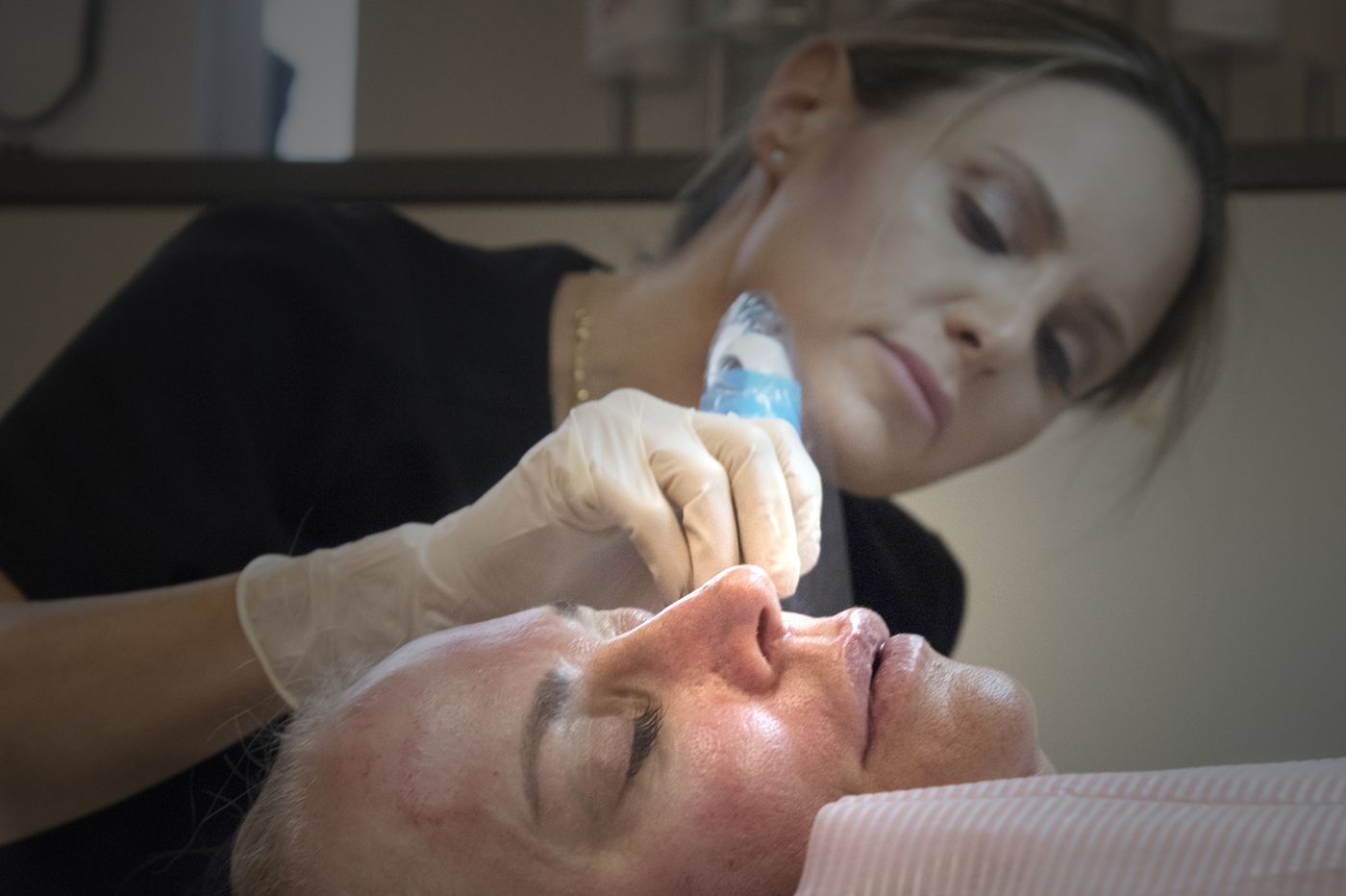 Microneedling: Fountain of youth with a sting