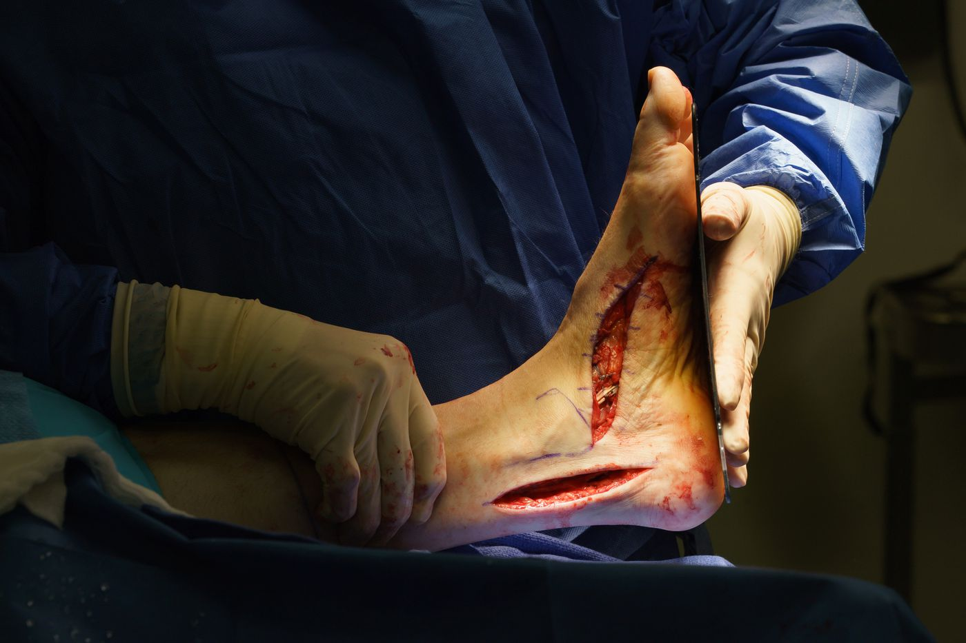 The fix for foot pain could be a surgery you didn't know about