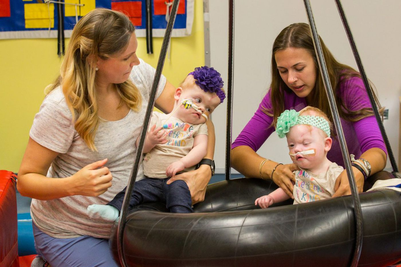 Born conjoined at the head, Delaney twins separated at Philadelphia hospital are doing 'fantastic'