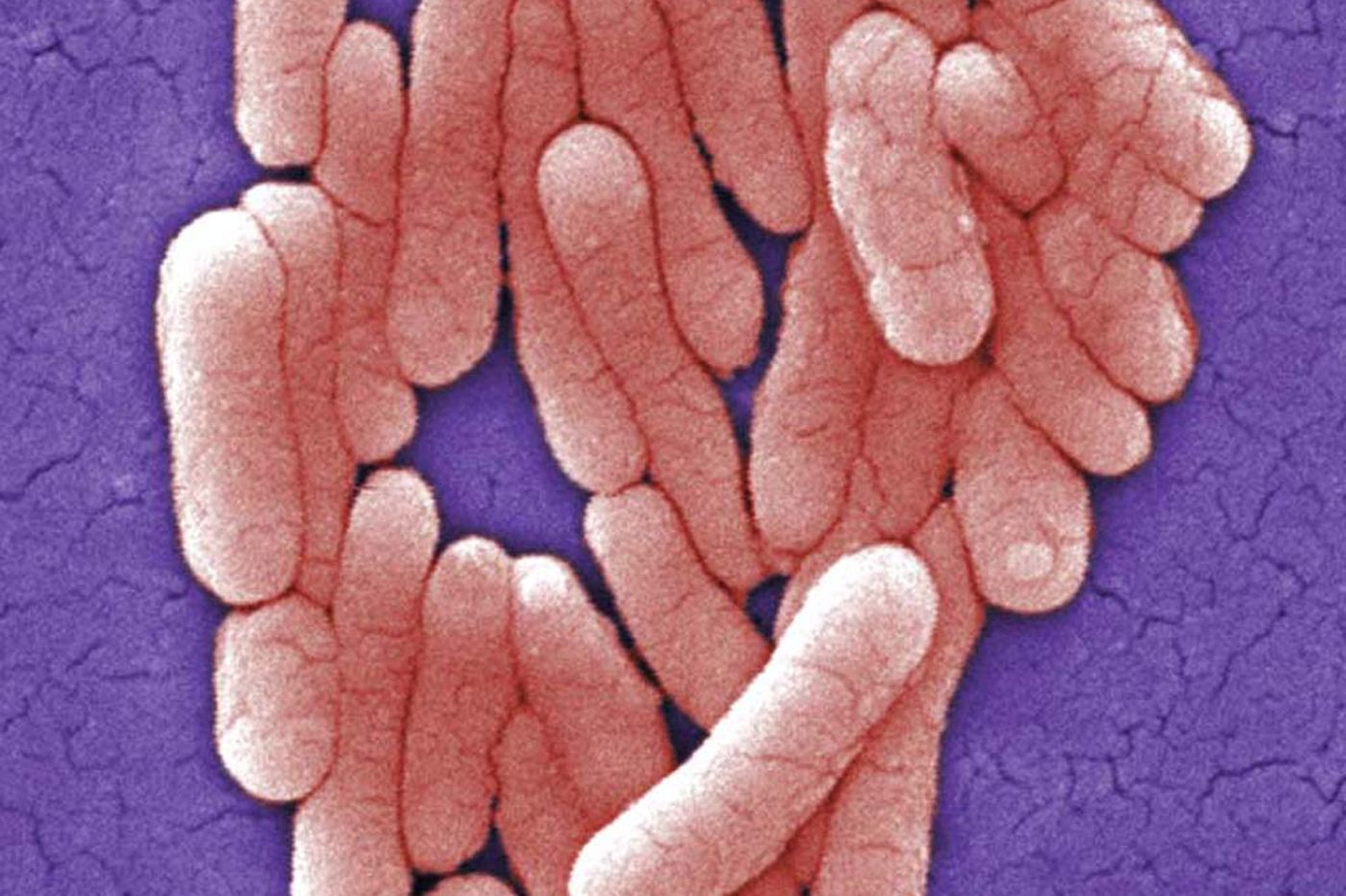 Salmonella outbreak sickens 33 at Pa. health-care facilities; many ate pre-cut fruit
