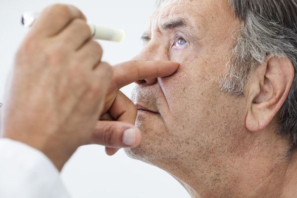 5 questions: Breakthroughs in treatment for a common cause of vision loss among U.S. seniors