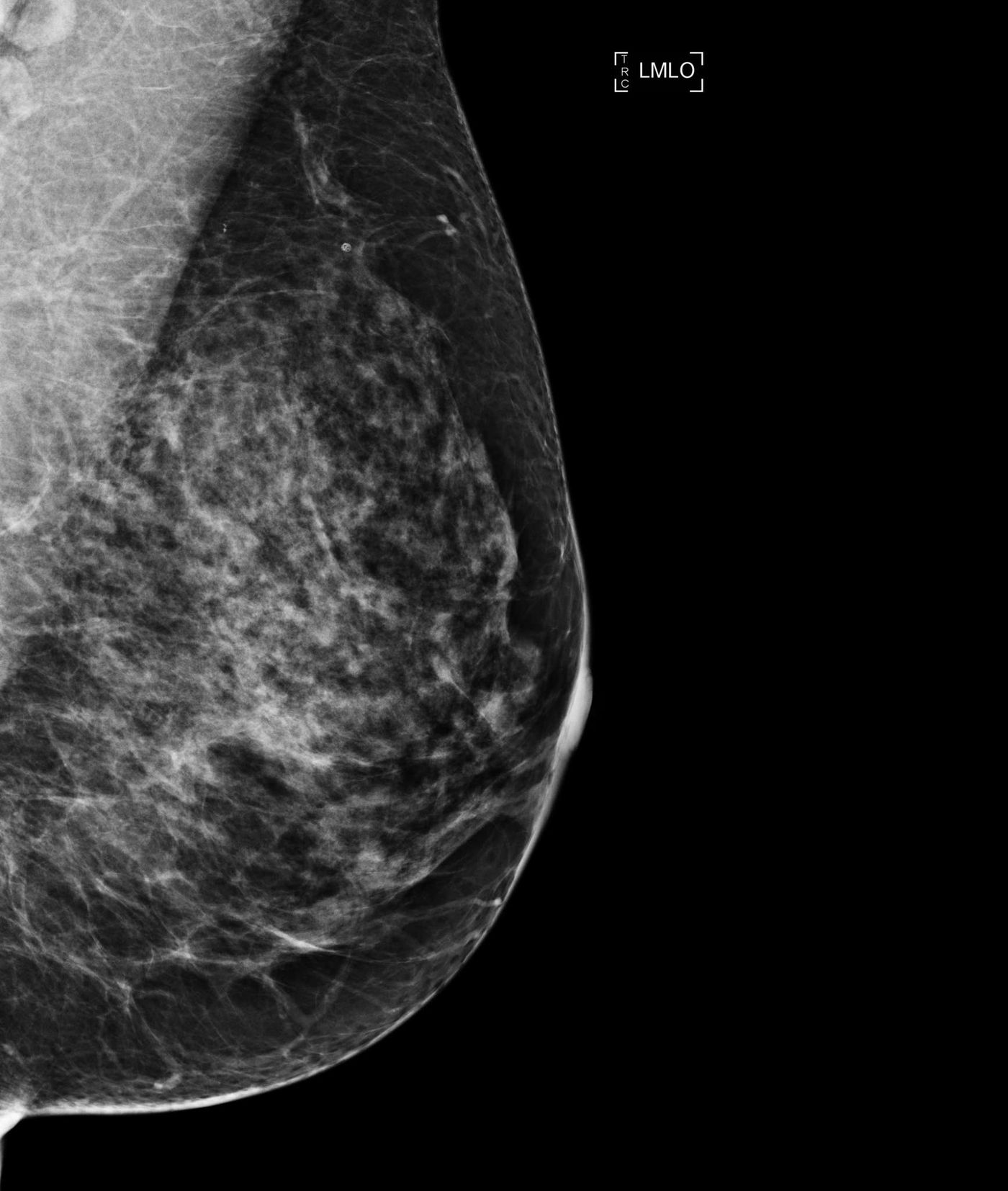 Breast cancer density laws mean more tests, unclear benefit